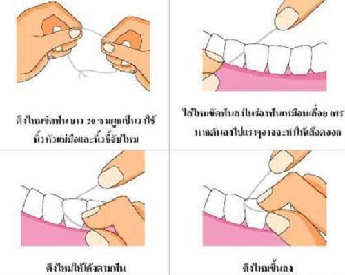 วิธีใช้ไหมขัดฟัน