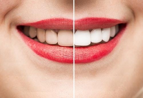 วิธีแก้ฟันเหลือง
